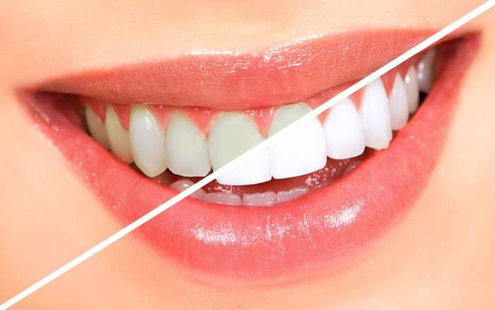 7 Things You Should Know About Teeth Whitening