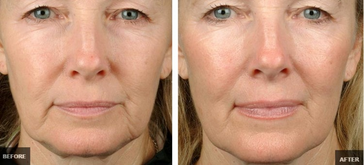 Thermage: Know the Benefits of This Skin Tightening Treatment