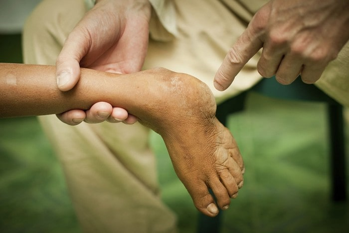 CTEV – Clubfoot should be Treated Early to Avoid Complications