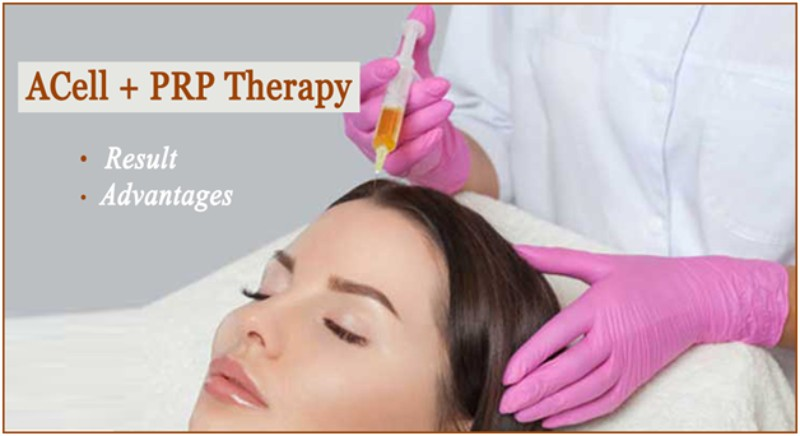 ACell + PRP Therapy? Results and Its Advantages